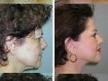 Facelift Photos