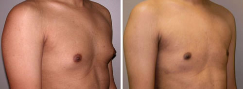 gynecomastia surgery in Beverly Hills