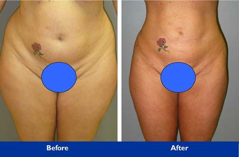 liposuction in beverly hills