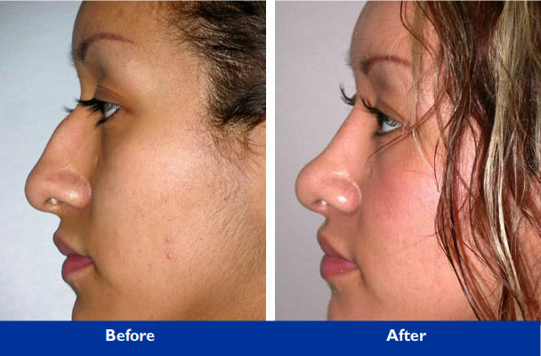 rhinoplasty in beverly hills